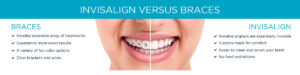 Invisalign--Braces---Version-2---Kirkpatrick-&-Lai