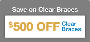 $500 Off Clear Braces